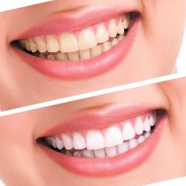 luma-smile-white-teeth-polish-light-whitelight-whitening-system-92shop-1612-08-92shop@7